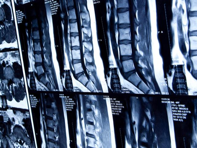 A wall of spinal cord x-rays